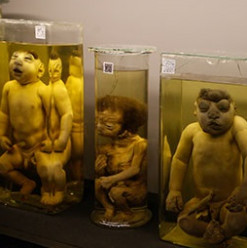 Rare Specimens of Unborn Children on Display at the Obstetrics & Gynaecology Museum